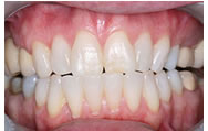 whitening_after